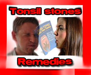 tonsil-stones-remedies