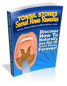 tonsillite-criptica1