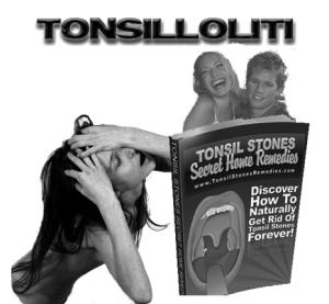 tonsilloliti cura definitiva
