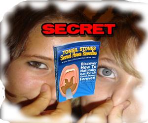 tonsil-secret